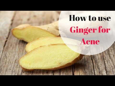 How to use Ginger for Acne