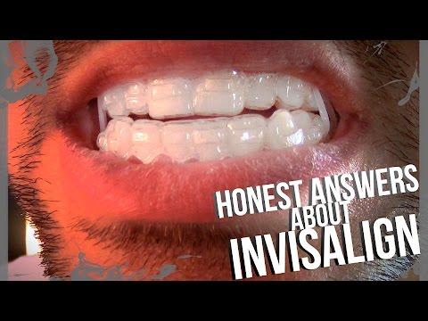 Invisalign Attachments: HONEST ANSWERS || Devin de Lima