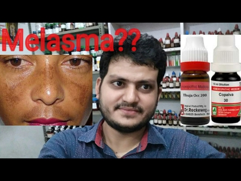 Melasma,Hyperpigmentation,झांँई!Homeopathic medicine for melasma?explain!