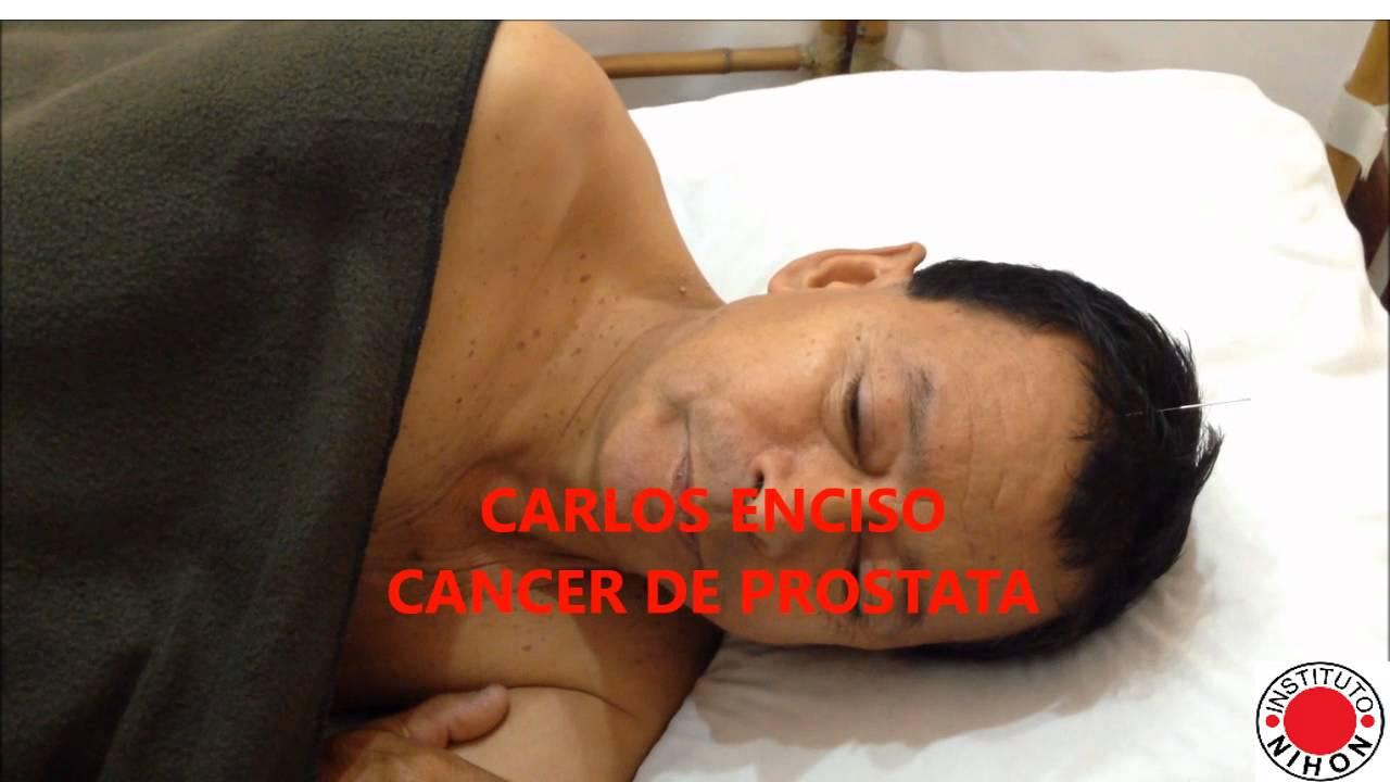 fase terminal del cáncer de próstata