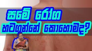 සමේ රෝග හටගන්නේ කොහොමද? | Piyum Vila | 11-09-2020 | Siyatha TV Thumbnail