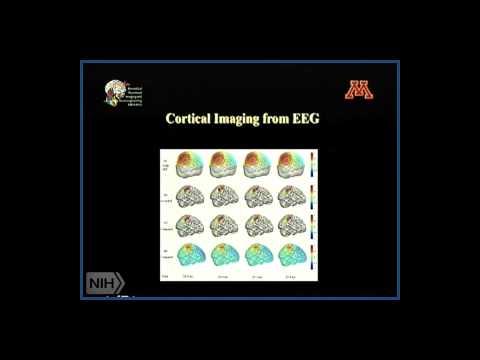 Adding fMRI to EEG