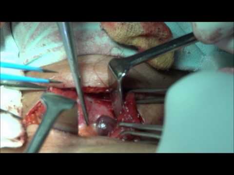 LEFT PARATHYROID ADENOMA RESECTION