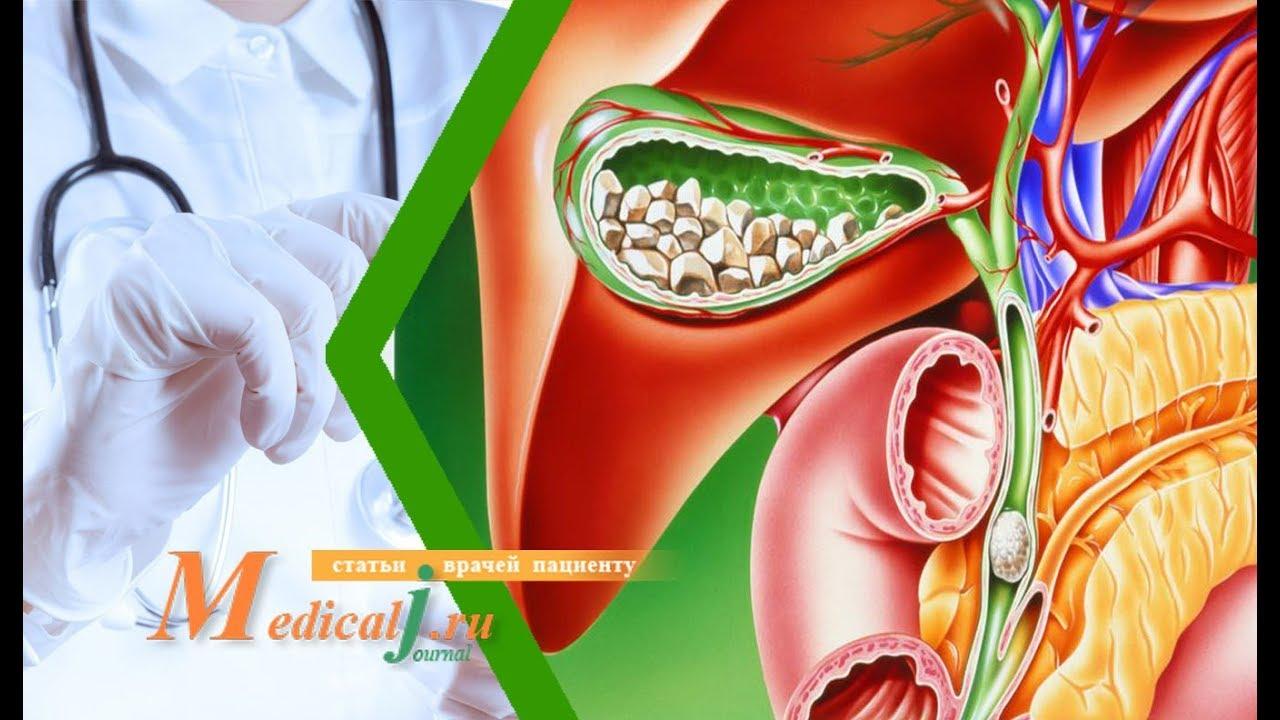 Лечение желчнокаменной болезни, симптомы, причины