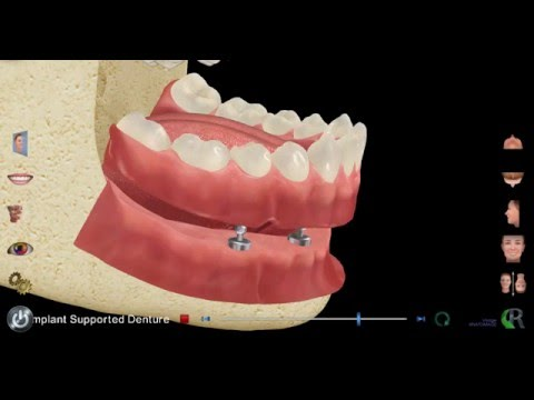 Significance Dental Specialists provides Implant Supported Dentures in Las Vegas, NV
