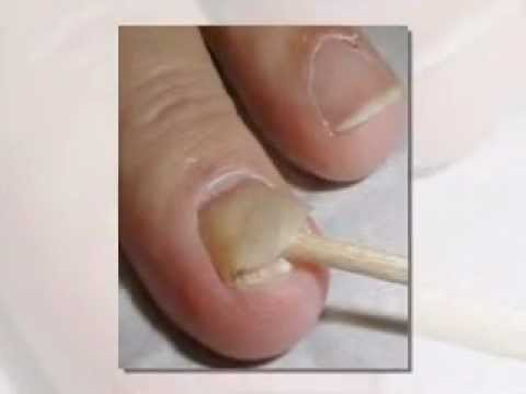 Nail Fungus Guide How To Get Rid of Nail Fungus - YouTube