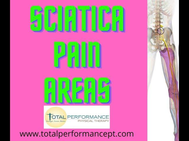 Sciatica Pain Areas