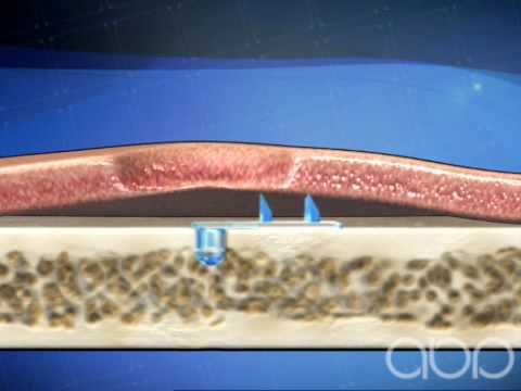 Brow Lift - Cosmetic Surgery - 3D Medical Animation || ABP ©