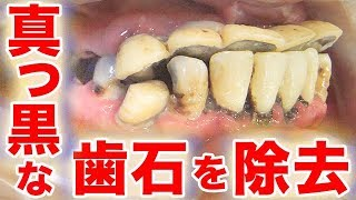 真っ黒な歯石を除去 Remove black tartar 【 dentistry】【 cleaning】 【 health and wellness】