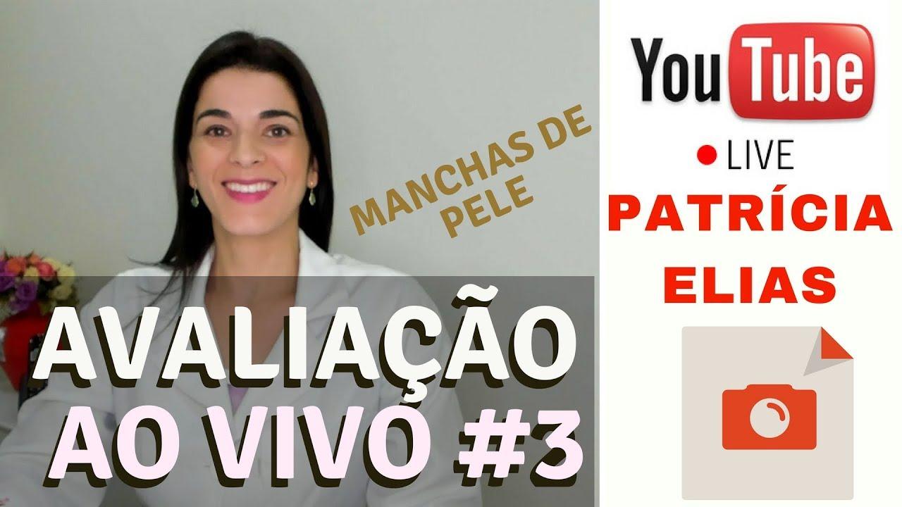 Avaliacao Ao Vivo 3 Manchas De Pele Patricia Elias Youtube