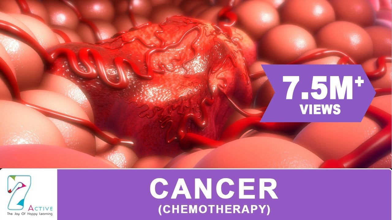 Cancer Chemotherapy Youtube