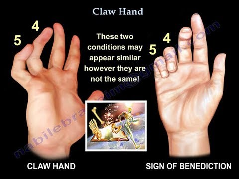 Claw Hand Ulnar Claw Hand Everything You Need To Know Dr Nabil