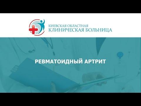 Ревматоидный артрит - симптомы, лечение, профилактика
