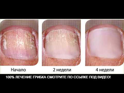 ПРОСТОЙ СПОСОБ лечение ГРИБКА ногтей на ногах