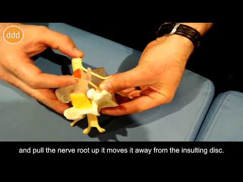 Nerve Dynamics and Pain Modeling