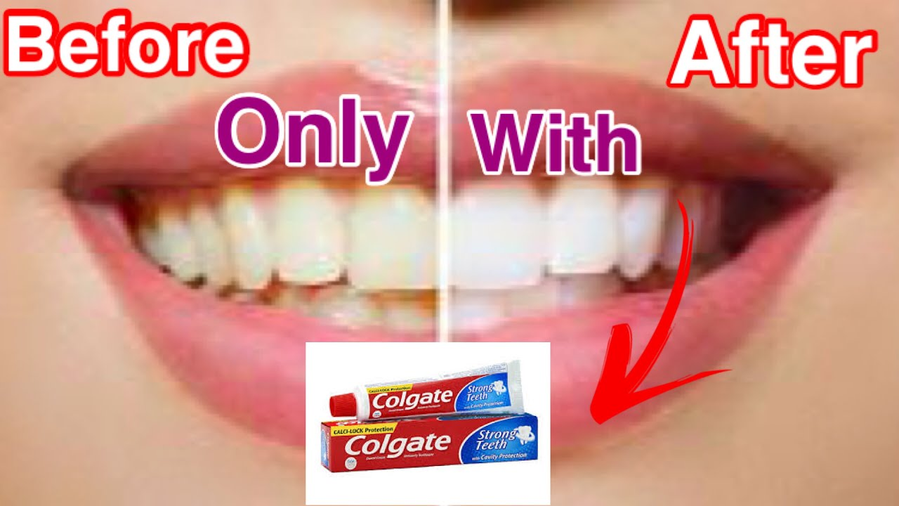 Easy Teeth Whitening At Home Tamil Youtube