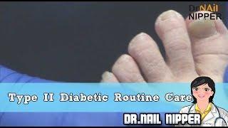 Type II Diabetic Routine Nail Care