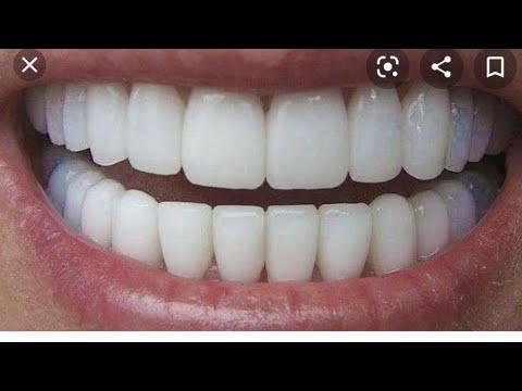 Como Tirar Tartaro Dos Dentes E Clarear Os Dentes Em 3 Minutos How