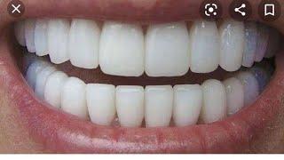 Como remover o tártaro e clarear os dentes em 3 minutos