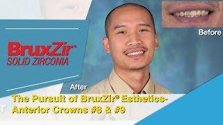 Clinical Case: The Pursuit of BruxZir® Esthetics: Anterior Crowns #8 & #9