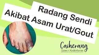 Asam Urat, Hiperurisemia, Dan Penyakit Gout   Patofisiologi, Gejala, Dan Pengobatannya