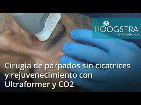 Cirugia de párpados sin cicatrices y rejuvenecimiento con Ultraformer y CO2 (17127)