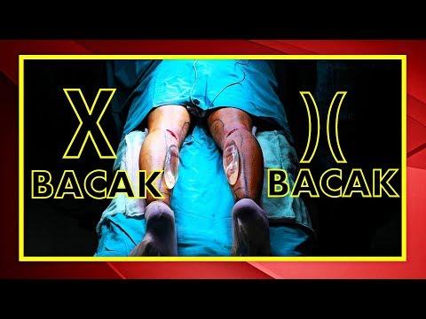 Parantez Bacak Ameliyatı ( X Bacak Estetiği )
