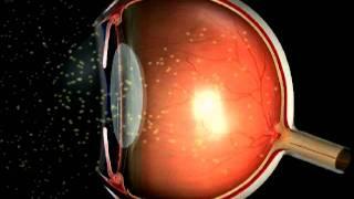 Wie funktioniert das Sehen - evrs