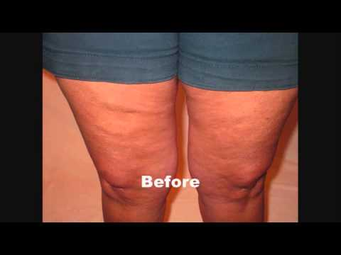 how to tighten thighs and get rid of cellulite