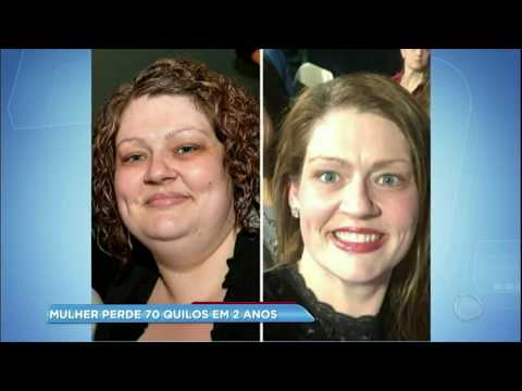 Mulher que perdeu 70 quilos revela três dicas para emagrecer