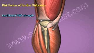 Patellar Dislocation or Subluxation|Causes|Risk Factors|Treatment|