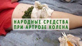 видео Чем лечить артроз коленного сустава