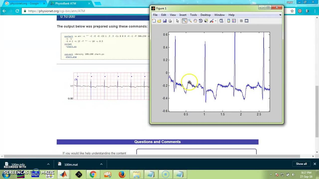 plot ecg database in matlab