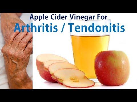 apple-cider-vinegar-for-arthritis-/-tendonitis