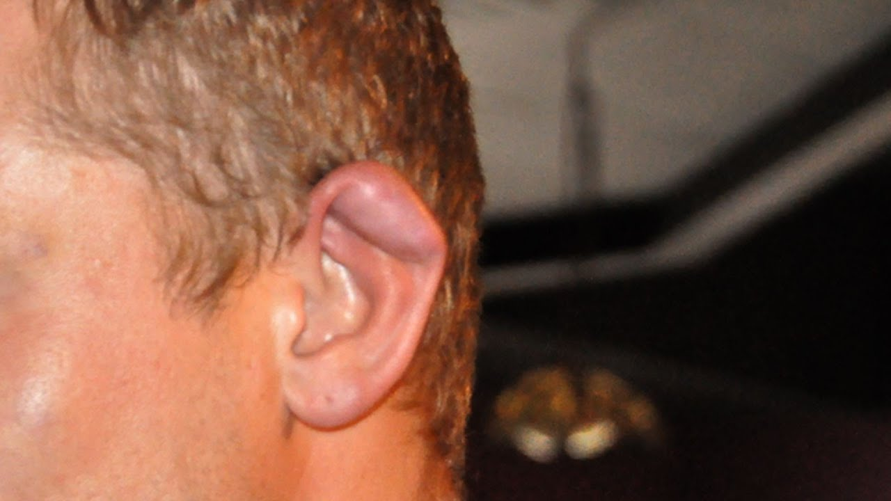 What Is Cauliflower Ear? | Ear Problems - YouTube