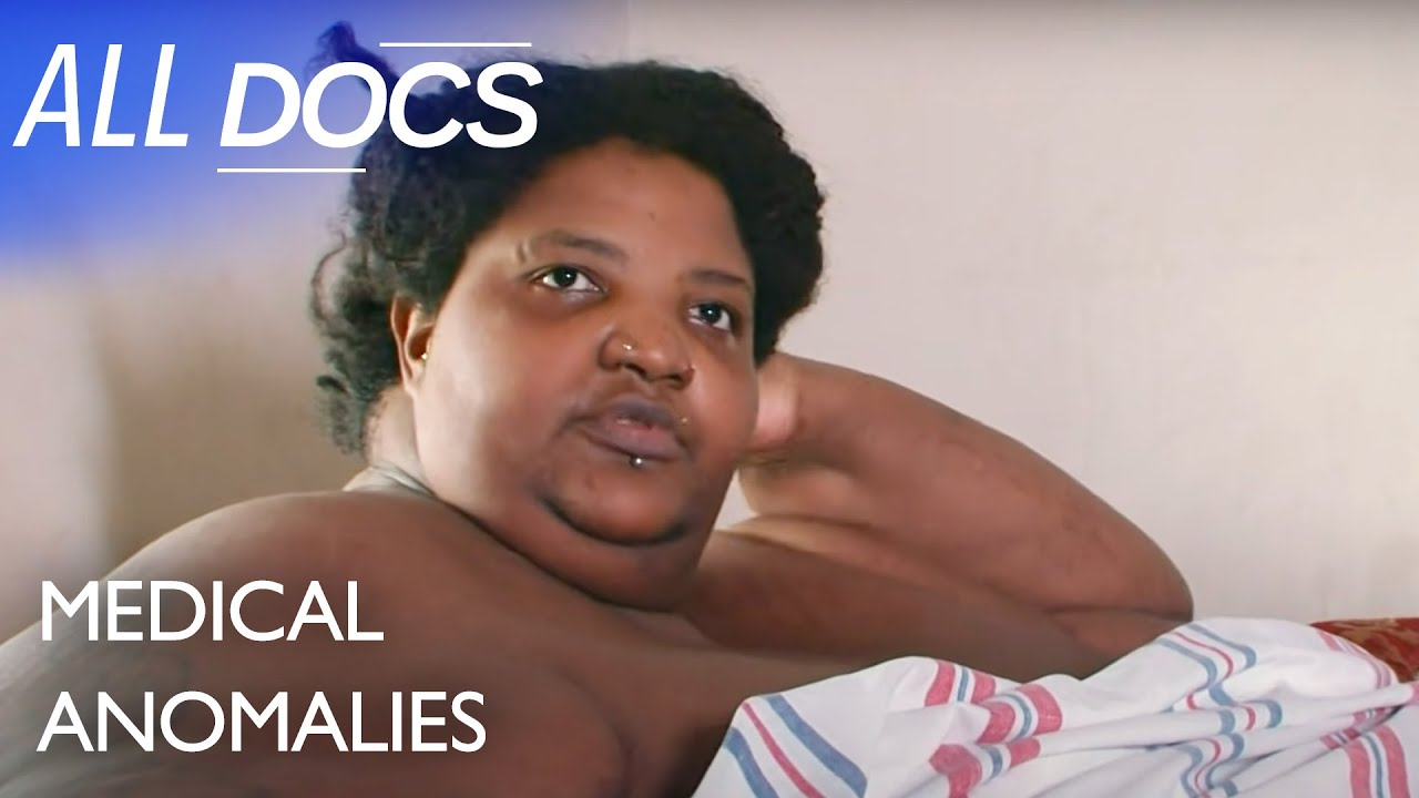 Download The 600 Pound Mom - Dominique Lanoise   Extraordinary People Documentary   Documental