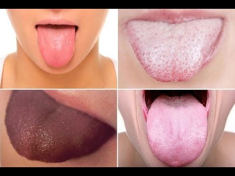 ШОК!!!!Болезни, о которых расскажет ваш язык
