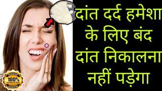 2 मिनट में दांत दर्द हमेशा के लिए खत्म दांत निकलाना नहीं पड़ेगा || Are Your Teeth Dying