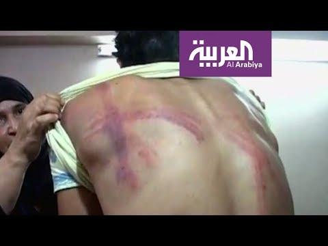 اعتداء جديد على لاجئين سوريين في لبنان  - 22:21-2017 / 11 / 13