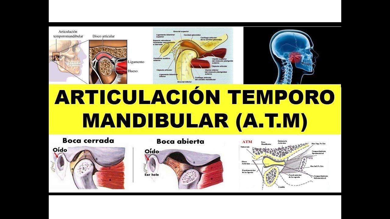 ARTICULACIÓN TEMPORO MANDIBULAR ATM\