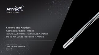 2.4 mm Mini Hip PushLock® Çapa Sahip olan düğümlü ve Düğümsüz Asetabuler labral açma Tamir ve 1.6 mm
