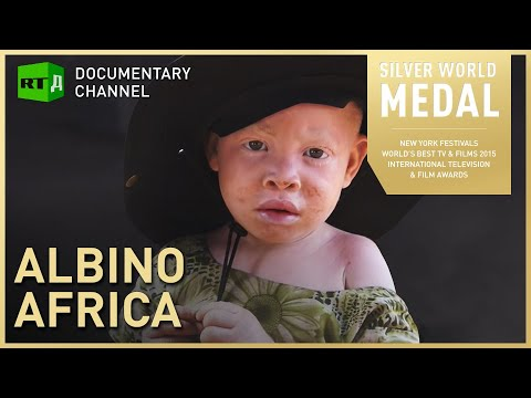Albino Africa. Assaulted and maimed for the colour of their skin