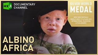 Albino Africa - Tanzanian albinos despised for their white skin | RT Documentary