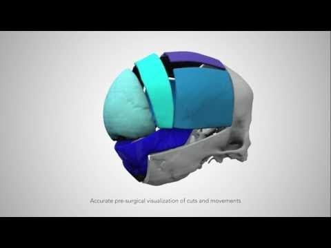 3D Systems VSP Cranial service