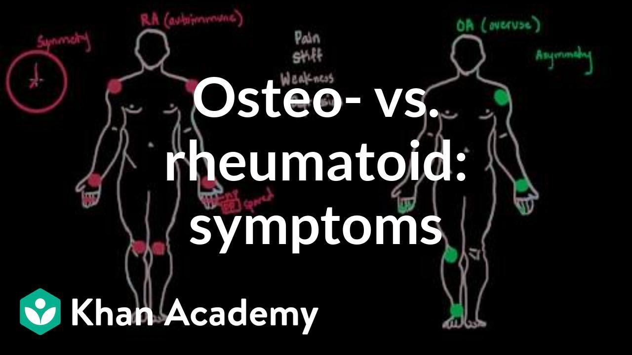 Osteoarthritis vs rheumatoid arthritis symptoms (video