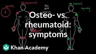 Osteoarthritis vs rheumatoid arthritis symptoms