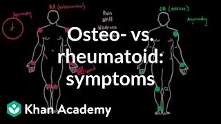 Osteoarthritis vs rheumatoid arthritis symptoms   NCLEX-RN   Khan Academy