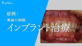 奥歯のインプラント補綴 精密審美歯科センター
