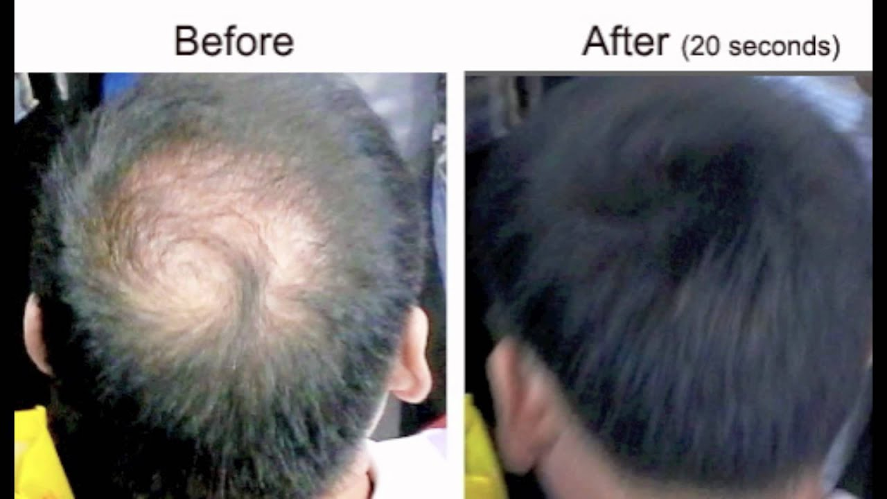 Hair Loss Treatment Balding Crown Caboki Video Clip