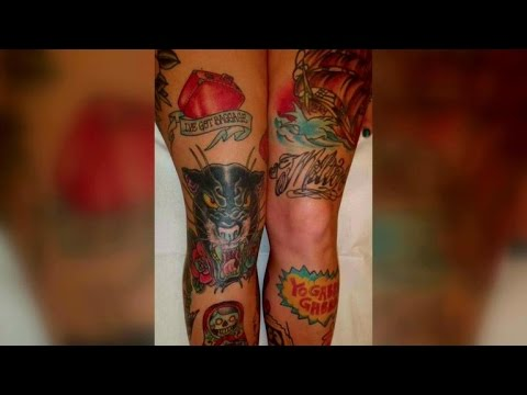 Old tattoo to blame for woman's 'cancer'